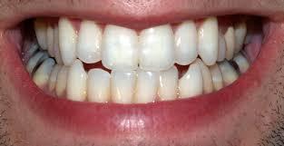 illustrasjon til tannhelse. Nærbilde av tanngard